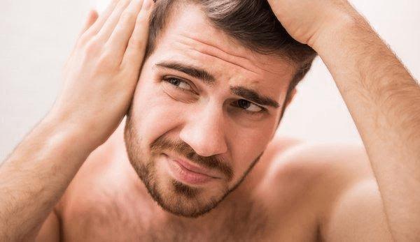 Nguyên nhân rụng tóc nam