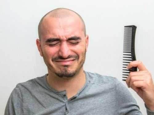 Hói đầu là tình trạng xảy ra rất phổ biến