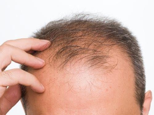 Một vấn đề được nhiều người quan tâm chính là hói đầu có di truyền hay không