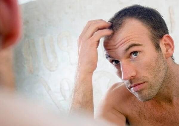 Những nguyên nhân chính gây ra hiện tượng hói đầu ở nam giới