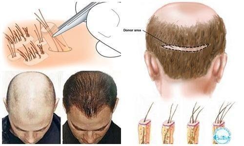 Các bạn nam giới sẽ trở nên tự tin hơn khi không còn bị hói đầu
