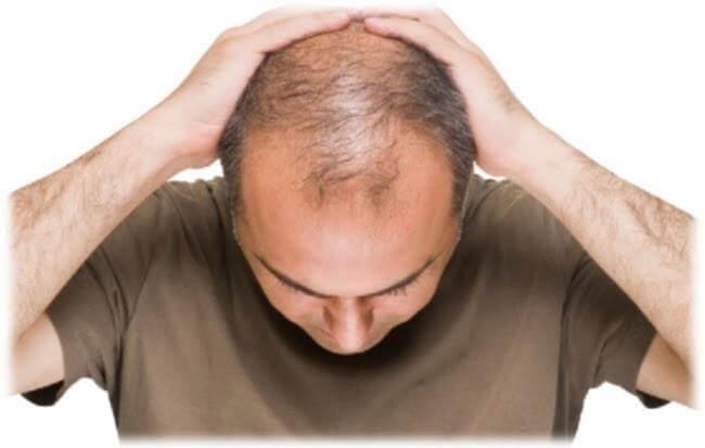 Hói đầu là nỗi ám ảnh của nhiều người