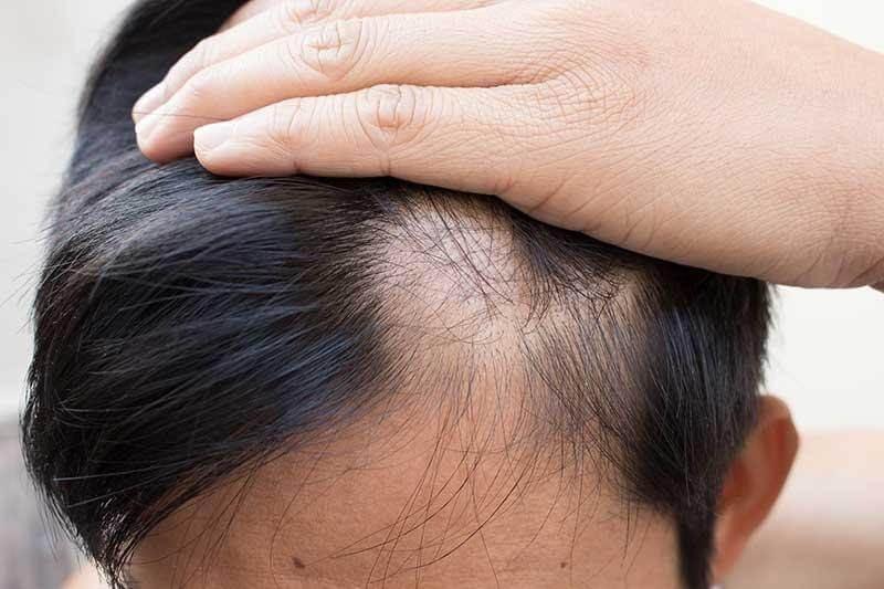 Nguyên nhân gây hói đầu