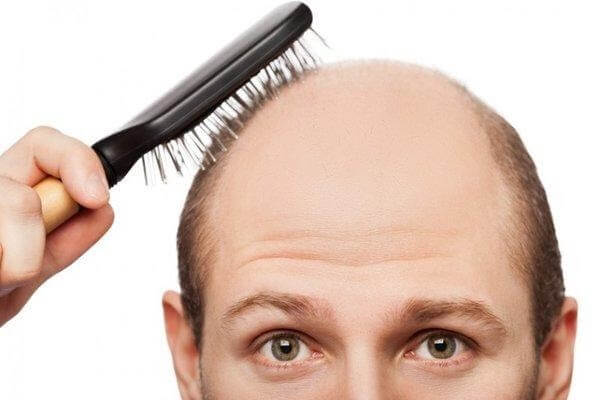Bệnh hói đầu có chữa được không là câu hỏi được nhiều người quan tâm
